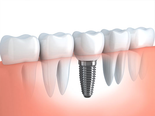 dental implant procedure in Chicago
